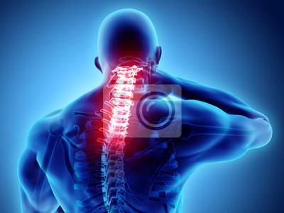 Bild 3D illustration, neck painful - cervical spine skeleton x-ray, medical concept.