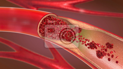 Bild 3d illustration of a constricted and narrowed artery and the blood cannot flow properly called arteriosclerosis