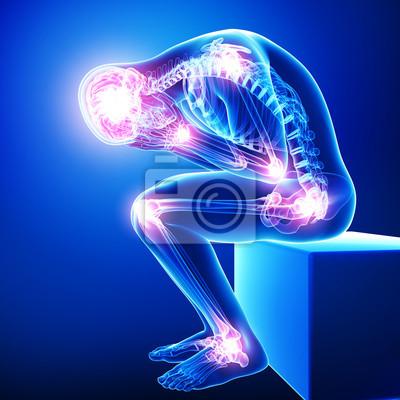 Bild Anatomie der männlichen Gehirn Schmerz mit allen Gelenken Schmerzen in blau