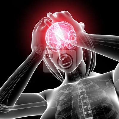 Anatomie der weibliche gehirn schmerz in grau leinwandbilder ...