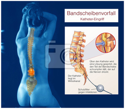 Bandscheibenvorfall.wirbelkanal.katheter-eingriff leinwandbilder ...