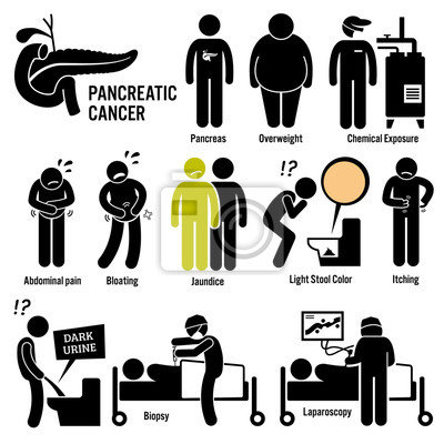 Bauchspeicheldrüsenkrebs symptome ursachen risikofaktoren diagnose ...