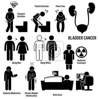 Blasenkrebs symptome ursachen risikofaktoren diagnose strichmännchen ...