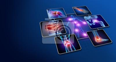 Bild Body Joint Pain
