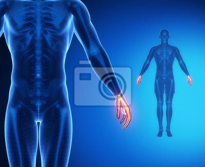 Handgelenk knochen anatomie x-ray-scan leinwandbilder • bilder ...