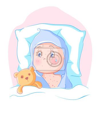 Bild Hautausschlag bei Kindern. Allergie