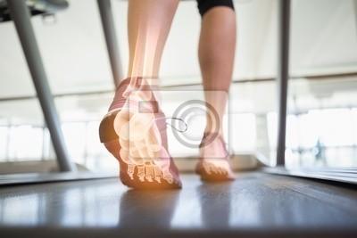 Hervorgehoben Fußknochen von Joggen Frau