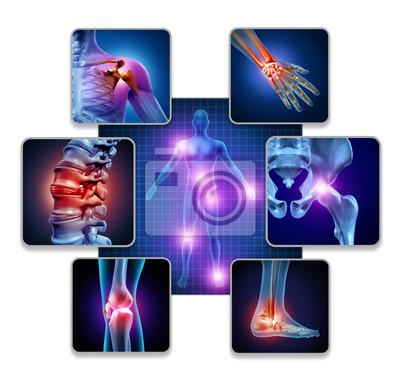 Bild Human Body Joint Pain
