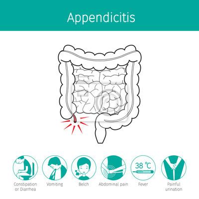 Illustration des menschlichen darms, umriss und appendizitis ...