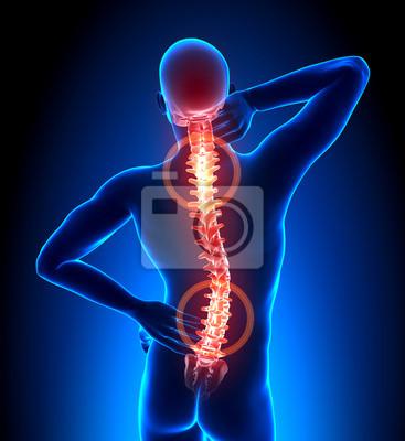 Männlich hurt backbone - wirbel schmerz leinwandbilder • bilder ...