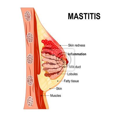 Mastitis. querschnitt der brustdrüse mit entzündung der brust ...