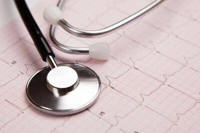 Bild Medizinischer Bericht und Kardiogramm