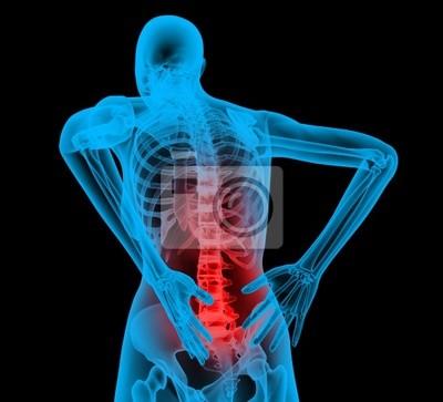 Menschliche Rückgrat in der Röntgen-Blick, Rückenschmerzen, Rückenschmerzen