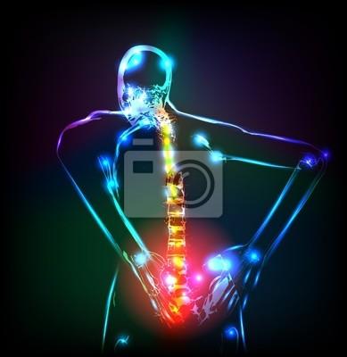Menschliche Rückgrat in x-ray, Rückenschmerzen