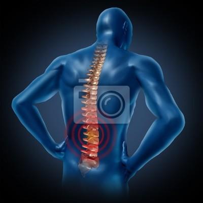 Menschlichen rückenschmerzen rückenmark skelett im körper ...