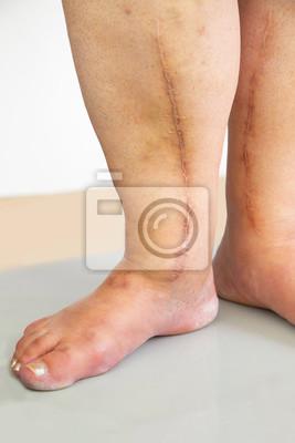 narben am bein