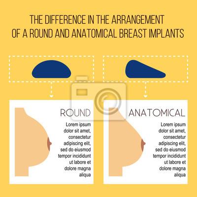 anatomische brustimplantate bilder