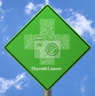 Schilddrüsenkrebs stellt endokrine-drüsen und bedrängnisse ...
