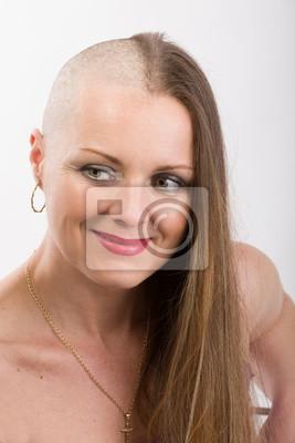 5deeb5f1bdb3 Schöne frau krebs patient leinwandbilder • bilder bestrafen ...