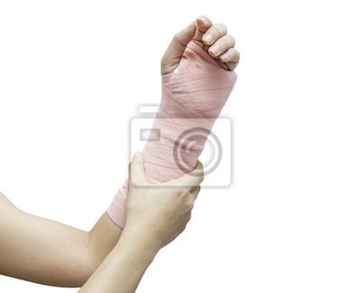 Splint, gebrochener knochen, gebrochene hand isolieren auf weißem ...