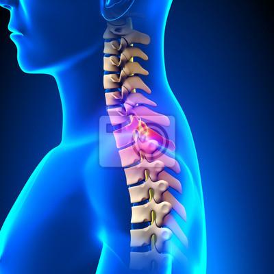 T1 disc - thoracic spine anatomy leinwandbilder • bilder ...