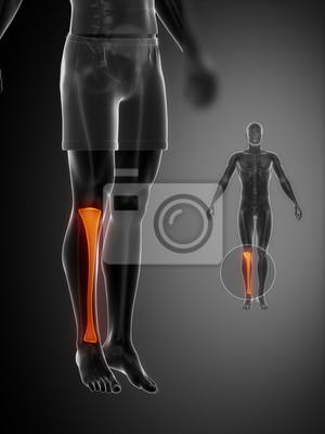 Tibia anatomy medical scan leinwandbilder • bilder shinbone ...