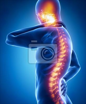 Bild Wirbelsäulenverletzung Schmerzen im sakralen und zervikalen Bereich Konzept