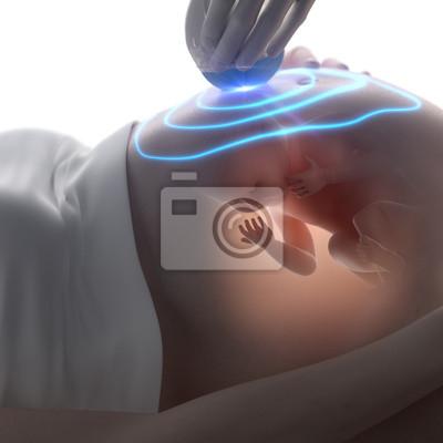 3d-ultraschall während der schwangerschaft konzept fototapete ...