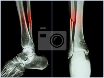 Bruchwelle des fibulaknochens (beinknochen). röntgen des beins ...