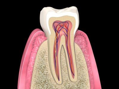 Dentale anatomie - obere molaren längsschnitt mit knochenstruktur ...