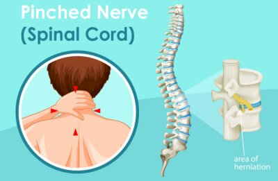 Diagram showing spinal cord