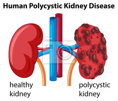 Diagramm, das menschliche polyzystische nierenerkrankung zeigt ...