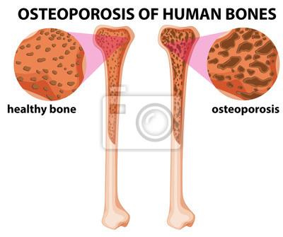 Diagramm, das osteoporose der menschlichen knochen zeigt fototapete ...