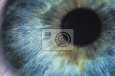 Fototapete Ein vergrößertes Bild des Auges mit einer blauen Iris, den Wimpern und der Sklera. Die Aufnahme wird mit einer Spaltlampe mit eingebauter Kamera gemacht