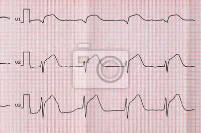 Vorderwandinfarkt Ekg Myokardinfarkt 2019 12 21