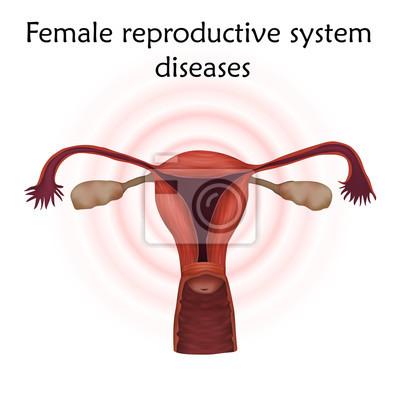 Erkrankungen der weiblichen fortpflanzungsorgane. gebärmutter ...