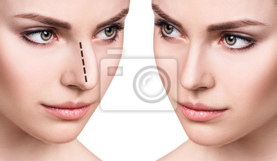 Fototapete Female face before and after cosmetic nose surgery.