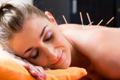 Fototapete Frau bei Akupunktur mit Nadeln im Rücken