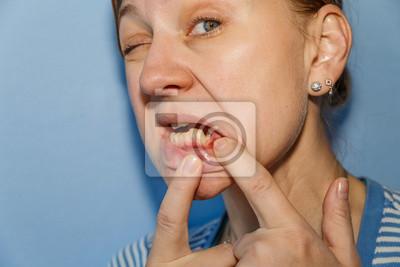 Zähne frau ohne Altersheim Ohne