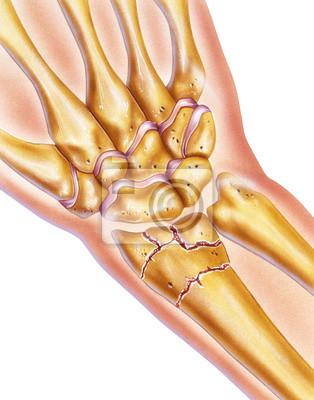 Hand und gebrochenes handgelenk - gebrochener radius knochen ...