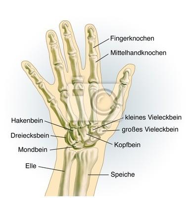 Handgelenk. knochen fototapete • fototapeten Handwurzel, Knochen ...