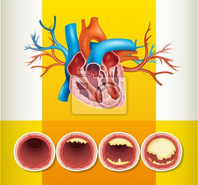 Herzanatomie und fett in der ader fototapete • fototapeten Vektor ...