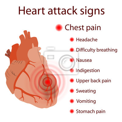 Herzinfarkt anzeichen, symptome. herzinfarkt. beschädigter ...
