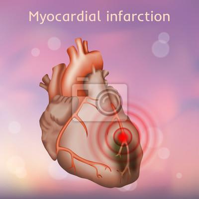 Herzinfarkt. herzinfarkt, schmerz. beschädigter herzmuskel. anatomie ...