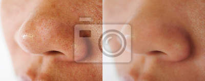 Fototapete Image closeup before and after treatment small pimple acne blackheads on skin of  nose and spot melasma pigmentation  on facial Asian woman .Problem skincare and health concept.