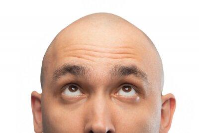 Fototapete Image of bald man looking up, half head