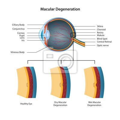 Makula-degeneration vektor-illustration fototapete • fototapeten ...