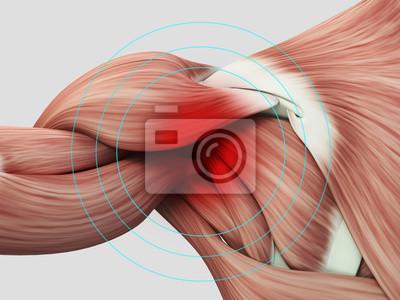 Menschliche anatomie muskel schulter. schmerzen oder verletzungen ...