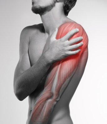 Menschliche armschmerzen. anatomie des menschlichen armes ...