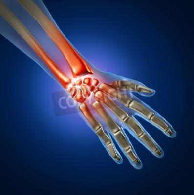 Menschliche hand und handgelenk schmerzen durch arthritis und ...